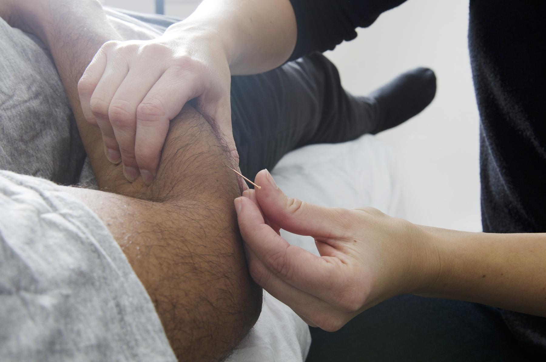 Des aiguilles en physiothérapie qui font du bien